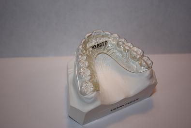 how to clean dental retainers