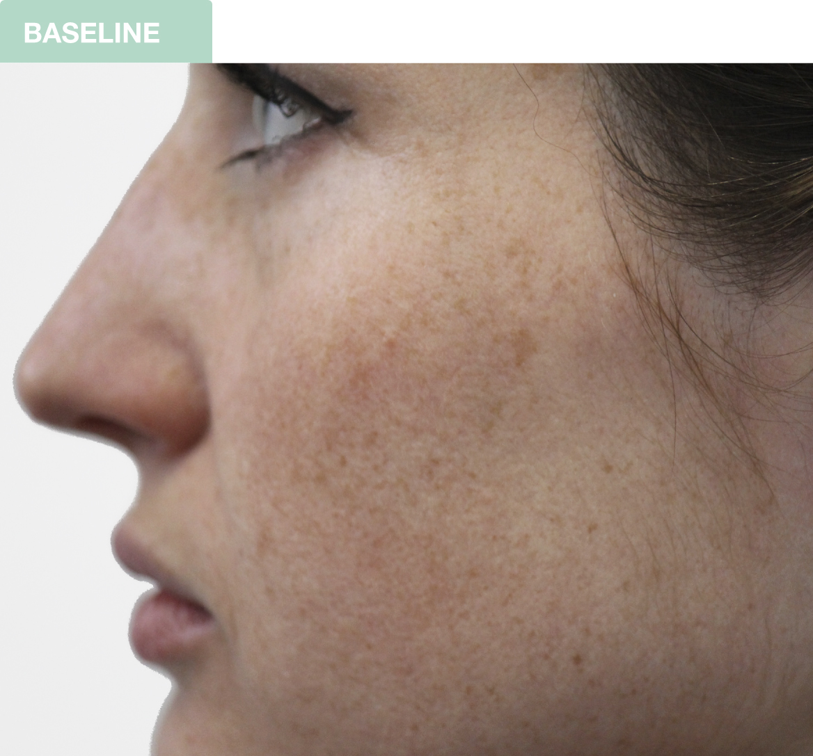 Skin condition prior to the chemical peel