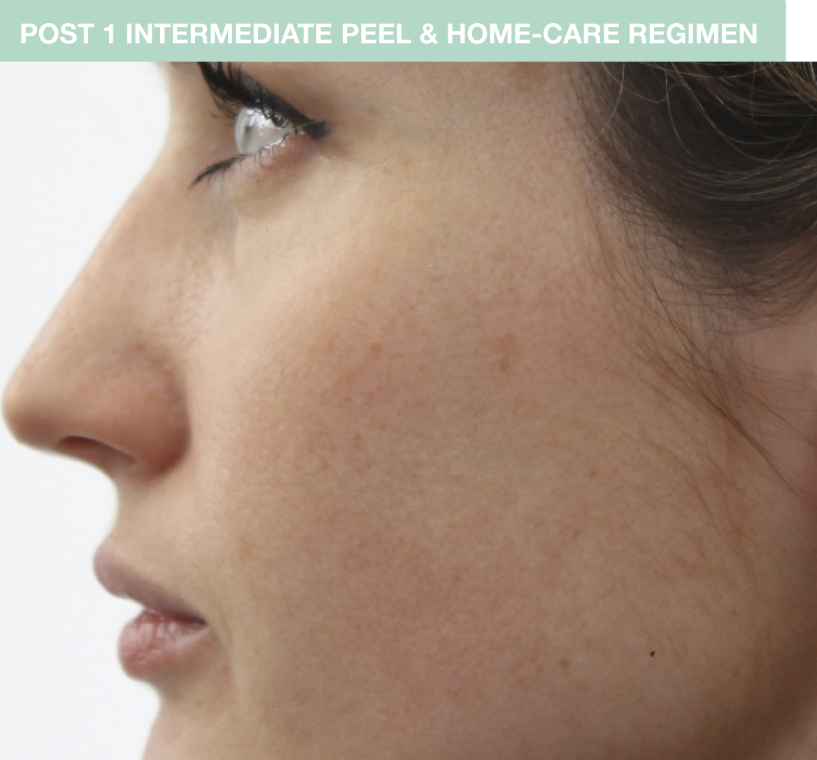 Skin after one Chemical peel: Replenix MD Perfect 10 Peel