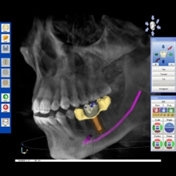 Advanced 3D Imaging Summit for Dentistry to be Held in Columbus, Ohio