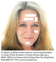 New: Lighten, Brighten Age Spots in 15-Minute Collagen Fibre Treatment