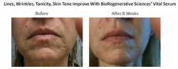 BioRegenerative Sciences, Inc. Releases Stem Cell-Based, Anti-Aging Cosmeceuticals at A4M Congress