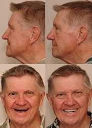"""""""Bite Collapse"""" Ages Baby Boomers, Reports Dr. Sam Muslin, DDS"""