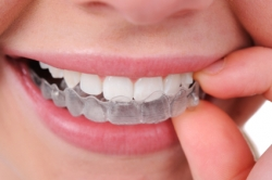 NY Orthodontist Extends Invisalign Promotion for NYC Area Residents Through the End of the Year