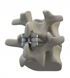 US Patent Granted for the WELLEX™ Interspinous Technology