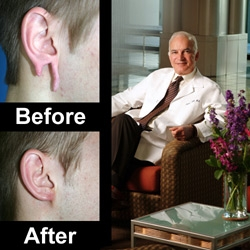 San Francisco Plastic Surgeon, Dr. David Kahn, Offers Surgery to Repair Earlobes After Years of Spacer Use
