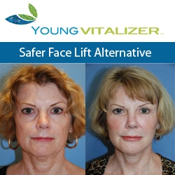 Award Winning Beauty Theorist and Facial Plastic Surgeon Dr. Philip Young Announces the Development of the YoungVitalizer, a New Incision-Less Face Lift Alternative