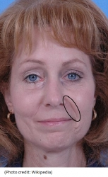New: Aging Lines at Nose & Mouth (