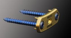 Eminent Spine Black Diamondback Rattlesnake™ Successfully Implanted