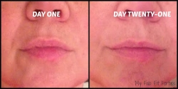 New Skin Cream Can Reduce Nasolabial Folds (Deep Lines at Sides of Nose to Mouth) Major Beauty Blogger Reports