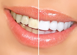 Dental Check Ups Suggested Prior to Teeth Whitening
