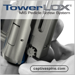 Captiva Spine's TowerLOX MIS Pedicle Screw System Receives Clearance for Enhanced Rod Insertion and Reduction