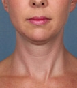 Ritacca Cosmetic Surgery & Medspa First to Offer Fat-Dissolving Drug, Kybella
