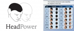 Scalp Micropigmentation SMP Training Now Available in Toronto, Canada by HeadPower Hair Clinic