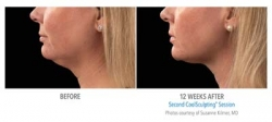 Cool Mini Now FDA Approved to Freeze Off a Double Chin Offered at Yolo Laser Center & Med Spa