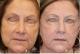 Skin Deep Laser Services
