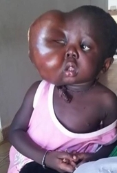 Dr. Michael K. Obeng Will Perform a Miraculous Surgery on Sarjo Trawally, a 4-Year-Old Girl from Gambia with a Life Threatening Facial Cystic Hygroma