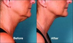 KYBELLA® Under Chin Fat Reduction @ Wymore Laser & Anti-Aging Center in Winter Park, FL