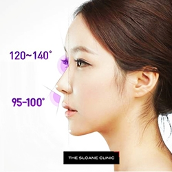 The Sloane Clinic™ Launches 3D Nose Lift; the Latest Non-Surgical Nasal Beautification Technique to Enhance the Nose