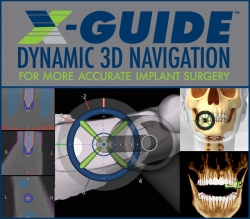 William Linger, DDS, MAGD First Dental Office in Charlotte to Use X-Guide Navigated Dental Implants