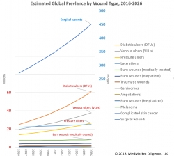 Billions in Global Wound Product Sales, Yet Chronic Wounds Remain a Chronic Problem, Based on New Research from MedMarket Diligence