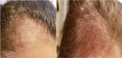 The Skin & Wellness Center is Now Offering Innovative Laser-Based Photobiomodulation Hair Regrowth Therapy