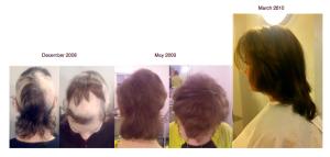 Trichotillomania Successful Hair Regrowth