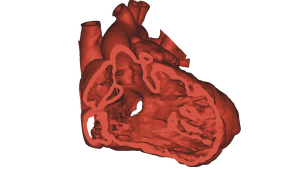Heart Model created using Mimics Innovation Suite software