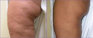 Skin Tightening & Cellulite Reduction for the Body