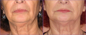 Skin Tightening for the Face, Jowls & Neck
